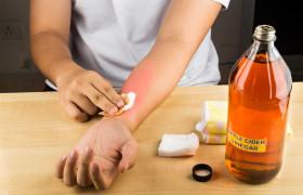 Biện pháp sơ cứu y tế khi bị dính Ammonia (NH3)