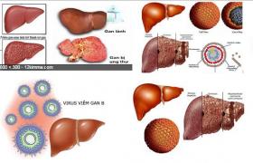 Bệnh viêm gan virut nghề nghiệp